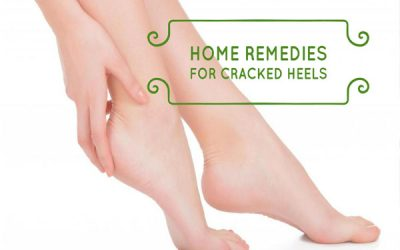 Easy home remedies for cracked heels